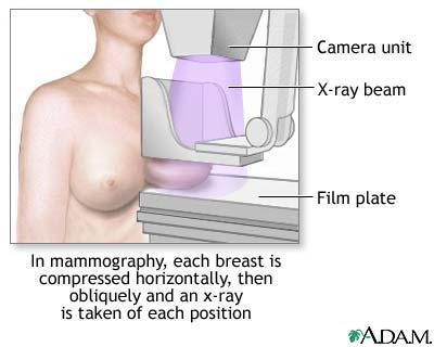 At what age should you get your breasts checked for breastcancer with a mammogram?
