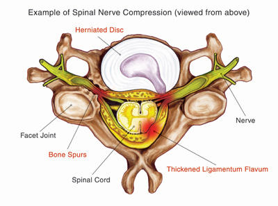 Does herniated nucleus pulposus mean the same as cervical radiculopathy?
