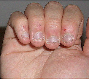 I've been biting my nails for 12years and now i stopped.my nails don't seem to look like normal nails when it grows.why?/how can i make it look normal