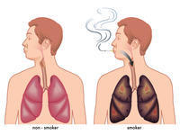 What medication does the medical aid paid for to stop smoking? 