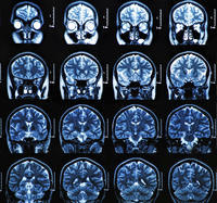 MRI report says 'A few tiny punctate T2 and FLAIR high signal foci in the left periventricular white matter are nonspecific'. Would you explain this?