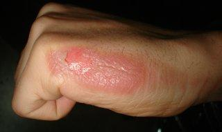 My hand burn (size of an oreo) and swollen from boiling water, and what should I do?