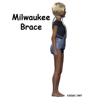 My child needs a milwaukee brace. What will it feel like?