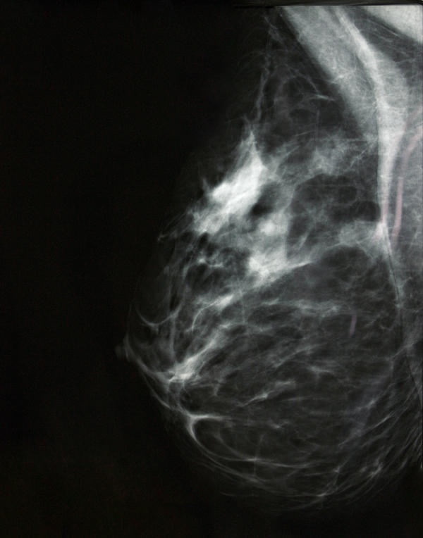 At what age should I start getting mammogram with a close family history of breast cancer?