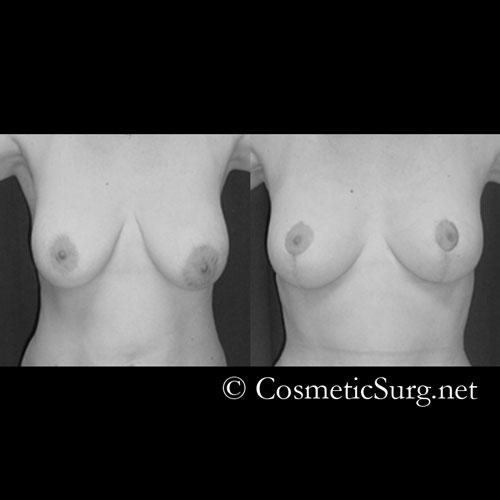 How much would it be for plastic surgery to make my breasts symmetrical their really uneven?