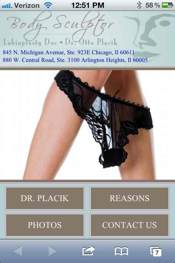 When would someone get a labiaplasty?