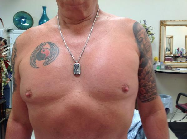 I'm thinking about pec implants, any opinions on something like that?