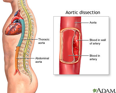 I'm 30years old, and was hospitalized with an aortic dissection last month. Am I going to die?