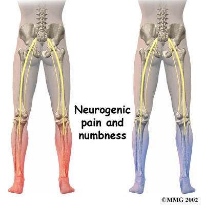 How common is it to have unresolved nerve pain in feet and legs after lower back pain surgery?