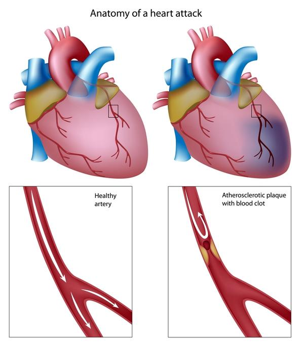 What are the signs of clogged arteries in the heart?
