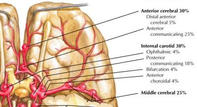 What is the difference between a brain aneurysm and an avm?