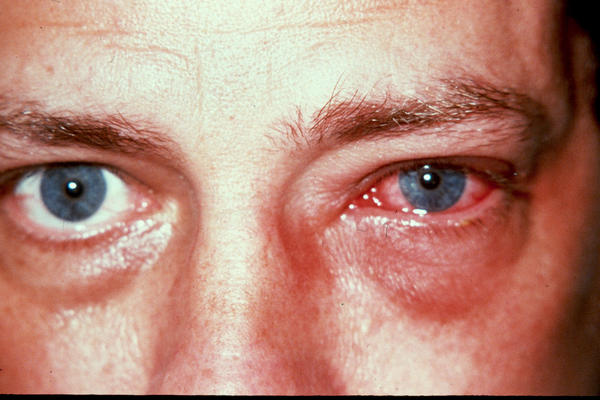 How long does it take for an eye infection to heal totally?