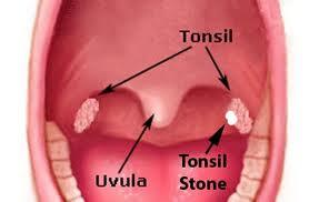 Are antibiotics used for tonsil stones?