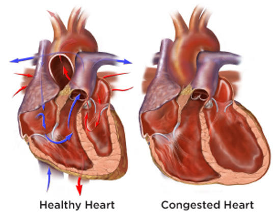 How does mild congestive heart failure develop from hypertension?