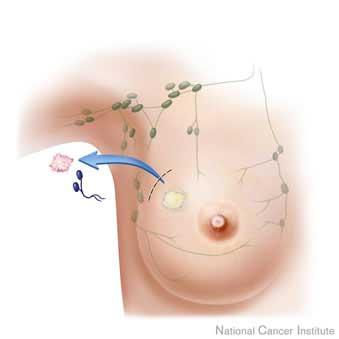 If the breast tumor is shrinking with chemotherapy is there a need for surgery?