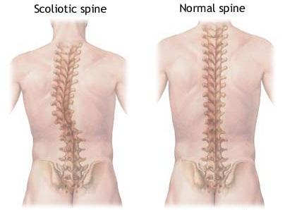 What can be done for osteoporosis and thoracolumbar scoliosis?