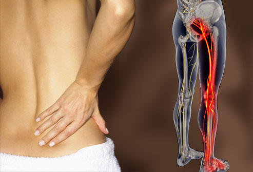 What condition would cause lower back pain and a swollen left leg?