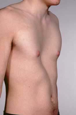 How bad do you think pectus excavatum looks? No doctor has ever commented on mine.