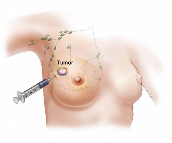 Armpit lump pain, family history of breast cancer. Can it be seen or biopsied?