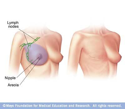 I'm having acute pain from my radical mastectomy surgery wednesday. Normal? I have high risk breast cancer