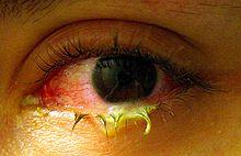 Bacterial conjunctivitis cure?
