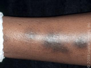 What causes a brown discoloration on my wife's lower legs?