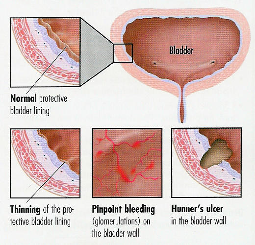 What are  hunner ulcers and is this serious if I have them?
