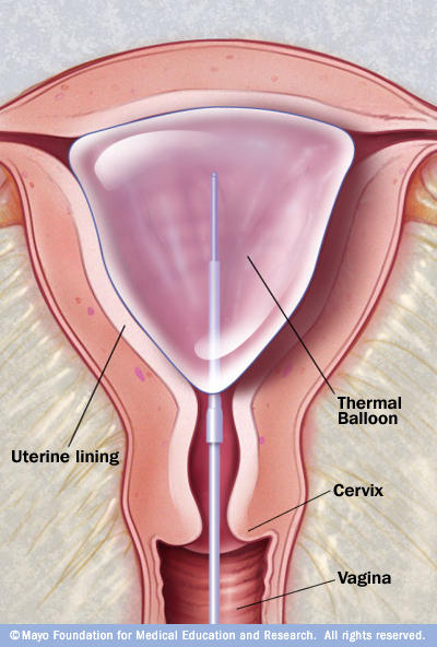 What happens after an endometrial ablation?