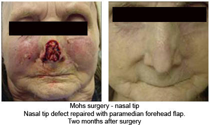Will I have a bad scar after conventional surgery to remove a 4mm basel cell carcinoma from the tip of my nose?
