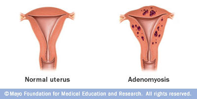What happens to cause adenomyosis?