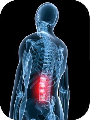 What can I do to speed up healing of my injured back?