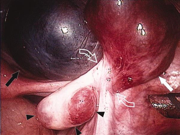 How might a laparoscopy help pelvic pain?