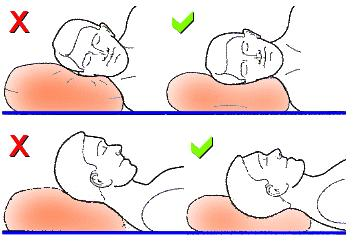 How should I treat my neck discomfort from sleeping on airplane upright?
