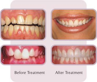 Gingivectomy or gingivoplasty; are they the same procedure?
