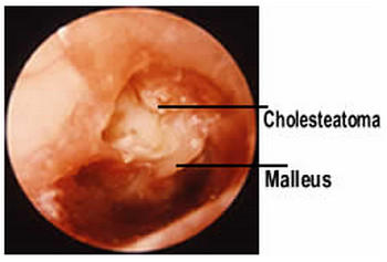 What symptoms of cholesteatoma are the most common?