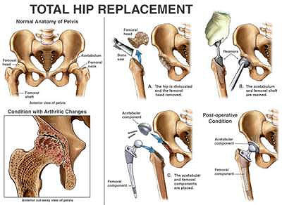 How long after a hip replacement before you are pain free?