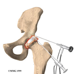 What is a hip arthroscopy?