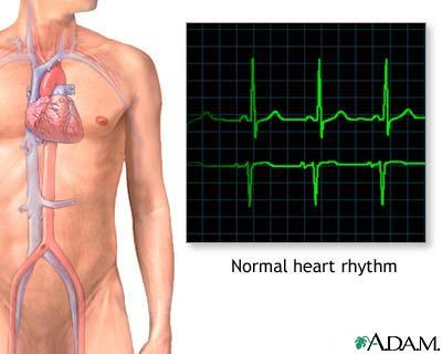 After v-fib, does the rhythm immediately go into asystole?
