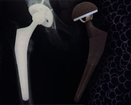 Is titanium used to make artificial hip joints?