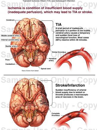 If a family member experienced a transient ischemic attack, how could I  recognize it?