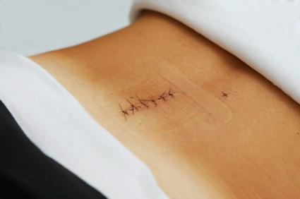 How long after back surgery can scar tissue cause pain?