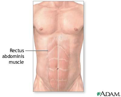 Is it possible to selectively train your lower abs?