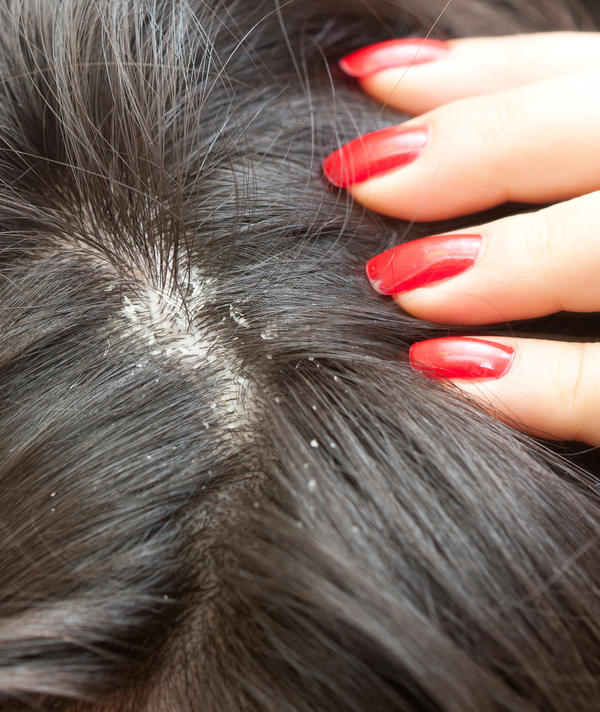 How can I cure greasy hair and dandruff using home remedies?