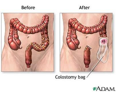 What is a reversal colostomy?