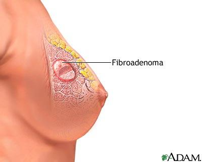 Will removing fibrodenoma leave a dent and/or ugly scar on your breast?