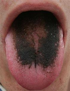 What is a hairy tongue?