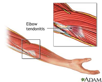 How to relieve pain from tendonitis?