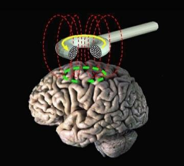 Is the method of transcranial magnetic stimulation any good in treating depression?