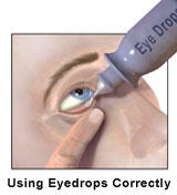 Can patanol (olopatadine) eye drops be taken for months on end for  eye allergies?