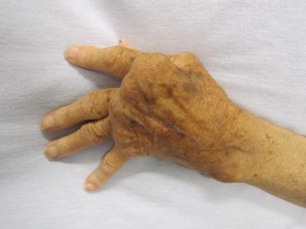 What will happen if I do not take medication for rheumatoid arthritis?